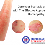 Cure your Psoriasis problems with The Effective Approach Through Homeopathy