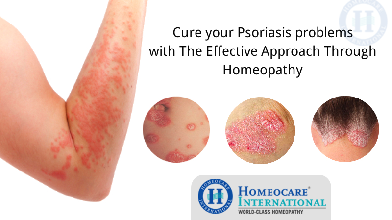cure your psoriasis problems with homeopathy treatment, Skeleton