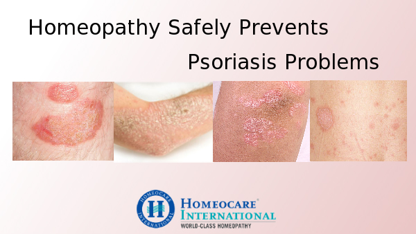 Psoriasis Treatment in homeopathy