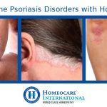 Overcome Psoriasis Disorders with Homeopathy