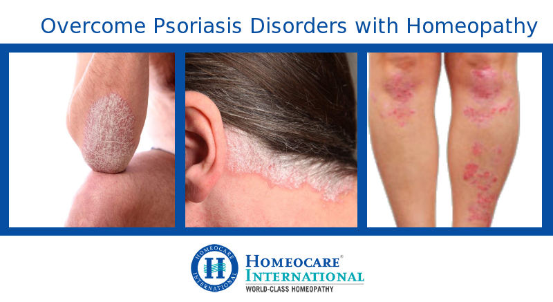 homeopathy-treatment-for-psoriasis