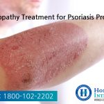 Homeopathy Treatment for Psoriasis problems