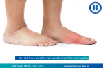 What your Swollen Feet Say About your Health?