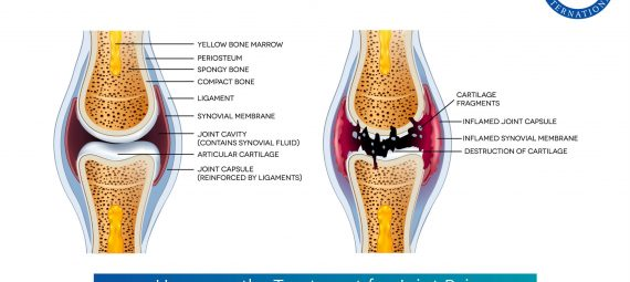 Homeopathy Treatment for Joint Pain