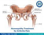 Homeopathy Treatment for Arthritis Pain