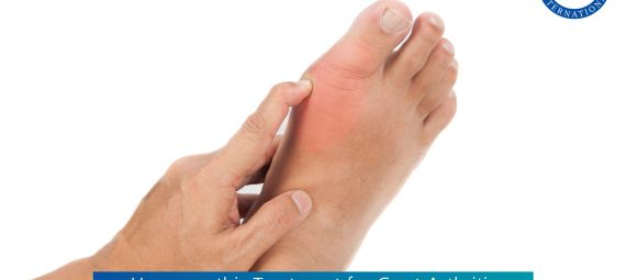 Homeopathy Treatment for Gout Arthritis