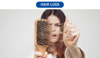 Homeopathic Treatment for Hair Loss