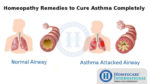 How to Reduce Asthma through Homeopathic Treatment?