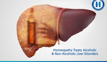 Homeopathy Treats Alcoholic Non-Alcoholic Liver Disorders