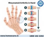 The Best Rheumatoid Arthritis Treatment for You