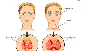 homeopathy treatment for hyperthyroidism
