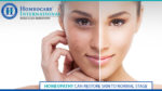 Treat Summer Skin Problems with Homeopathy