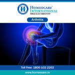 Homeopathy Treatment for Arthritis in Bangalore