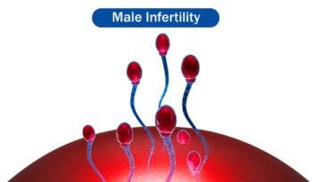 Male Infertility treatment in homeopathy