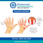Foods to Eat and Avoid for Psoriatic Arthritis