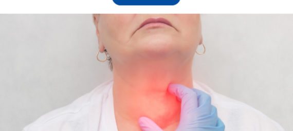 Goiter treatment in homeopathy