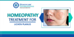 Lichen Planus Treatment in Homeopathy
