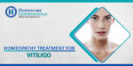 Homeopathy treatment for Vitiligo